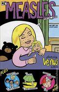Measles (1998) 2